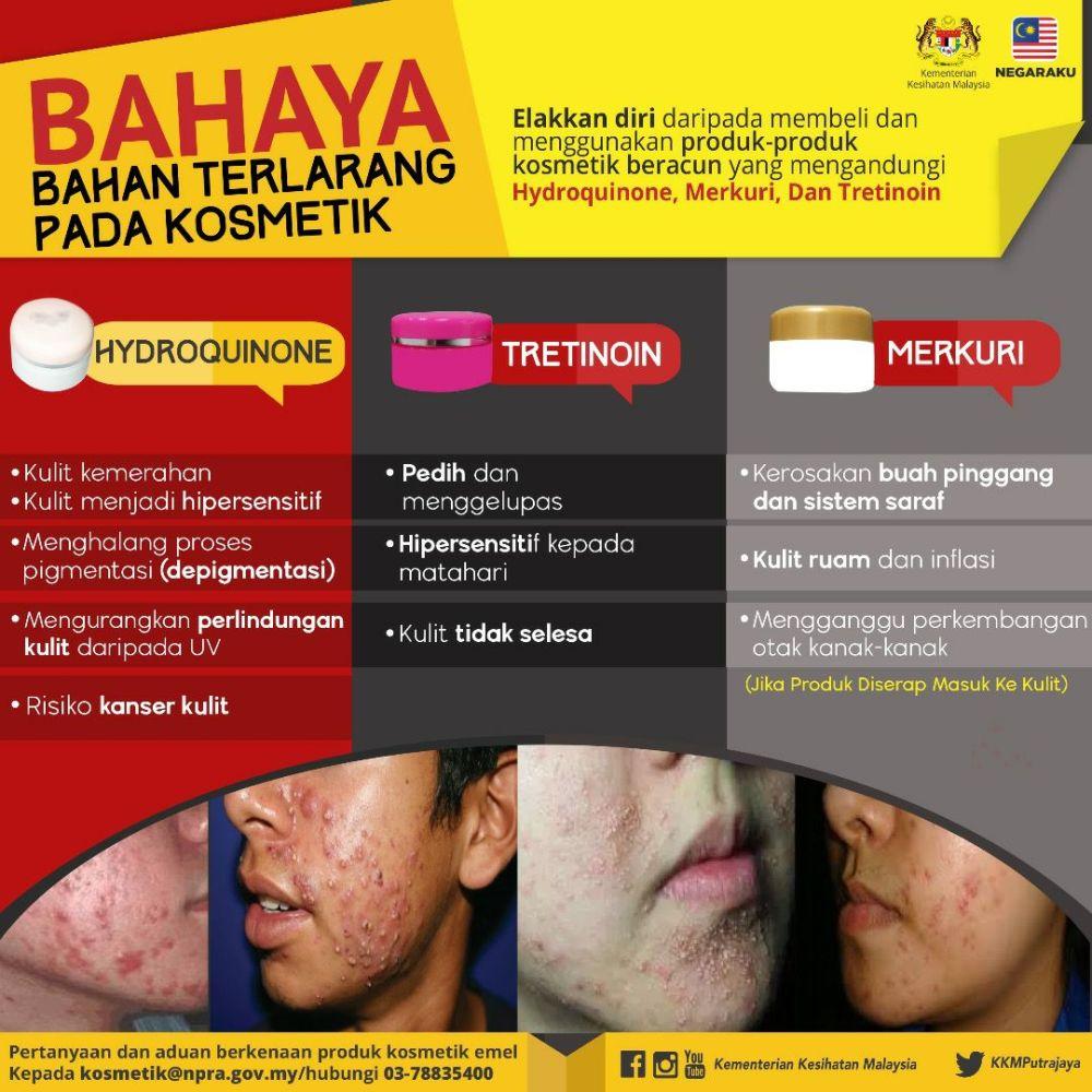 Berhati-hati Dengan Produk Kosmetik Bahaya