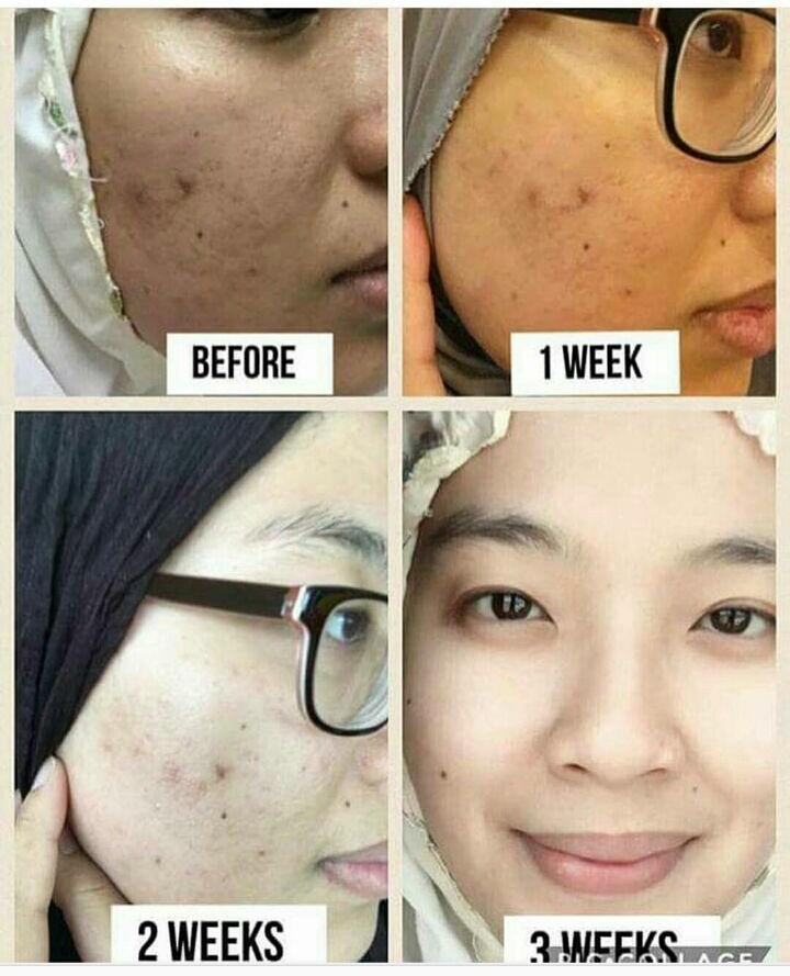 kebaikan kolagen untuk kulit