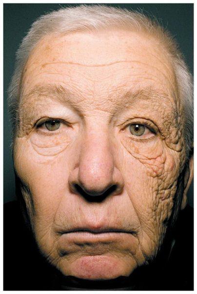 kulit berkedut