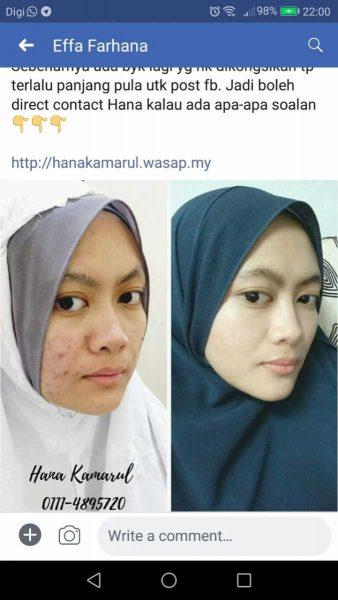 kulit sensitif jerawat