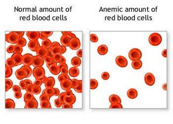 Anemia Ketika Hamil : Punca, Kesan dan Rawatan