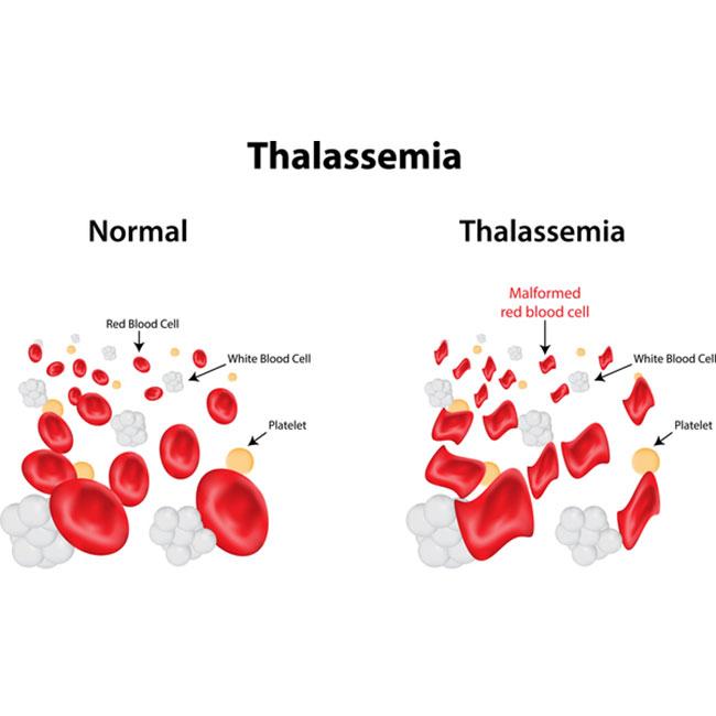 Zat Besi Untuk Ibu Hamil Thalassemia