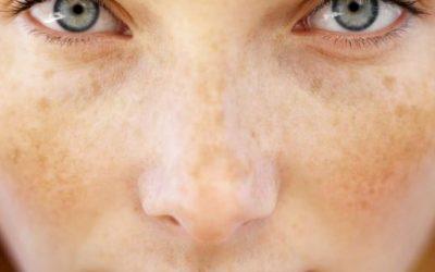 Skincare Untuk Jeragat Mana Yang Bagus?
