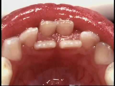 cabut gigi susu