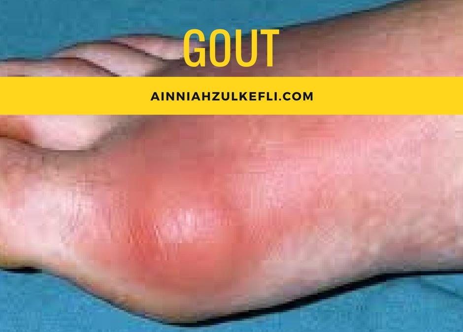 7 Petua Hilangkan Gout Dengan Cepat dan Berkesan