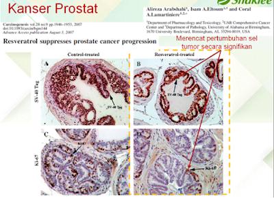 suplemen untuk kanser