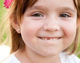 Perlu Ke Cabut Gigi Susu Anak Yang Dah Goyang?